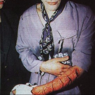 cropped-richey-edwards-carves-4-real-into-his-arm